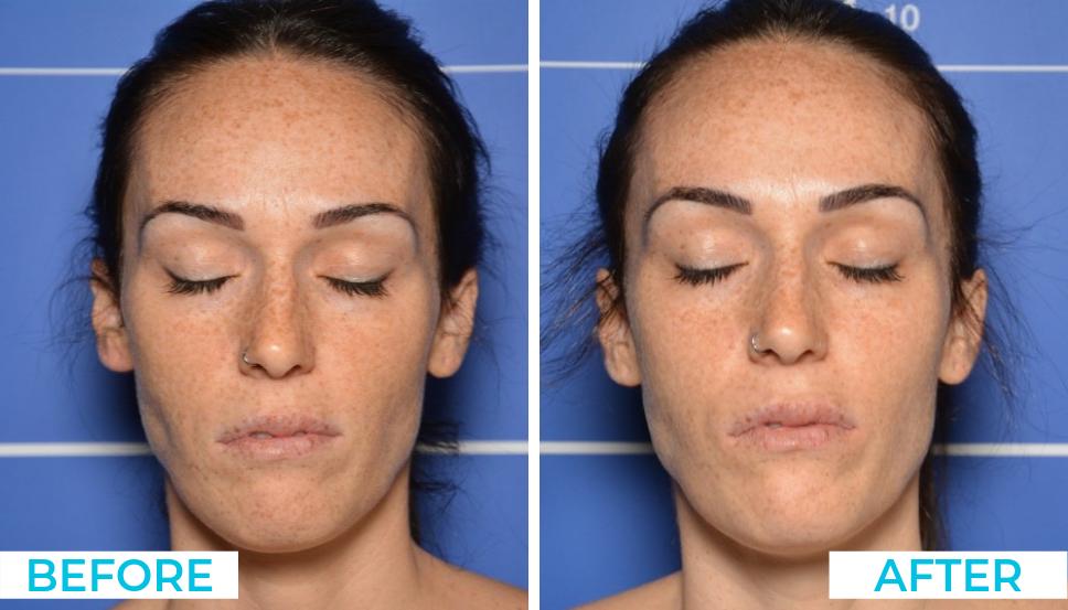 Skin Needling 1