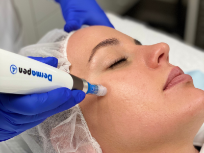 Medical Skin Needling